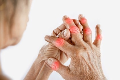 woman-suffering-from-joint-pain-in-fingers-hand